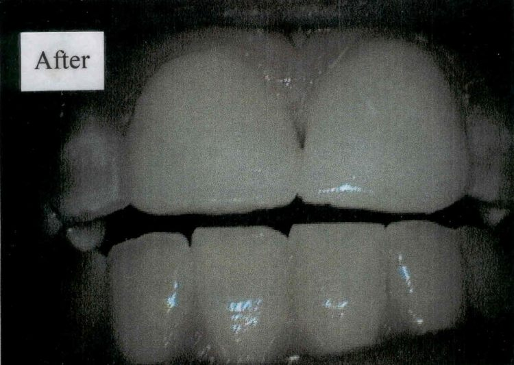 After Diastema Closure