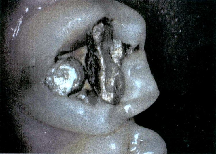 Before tooth colored filling