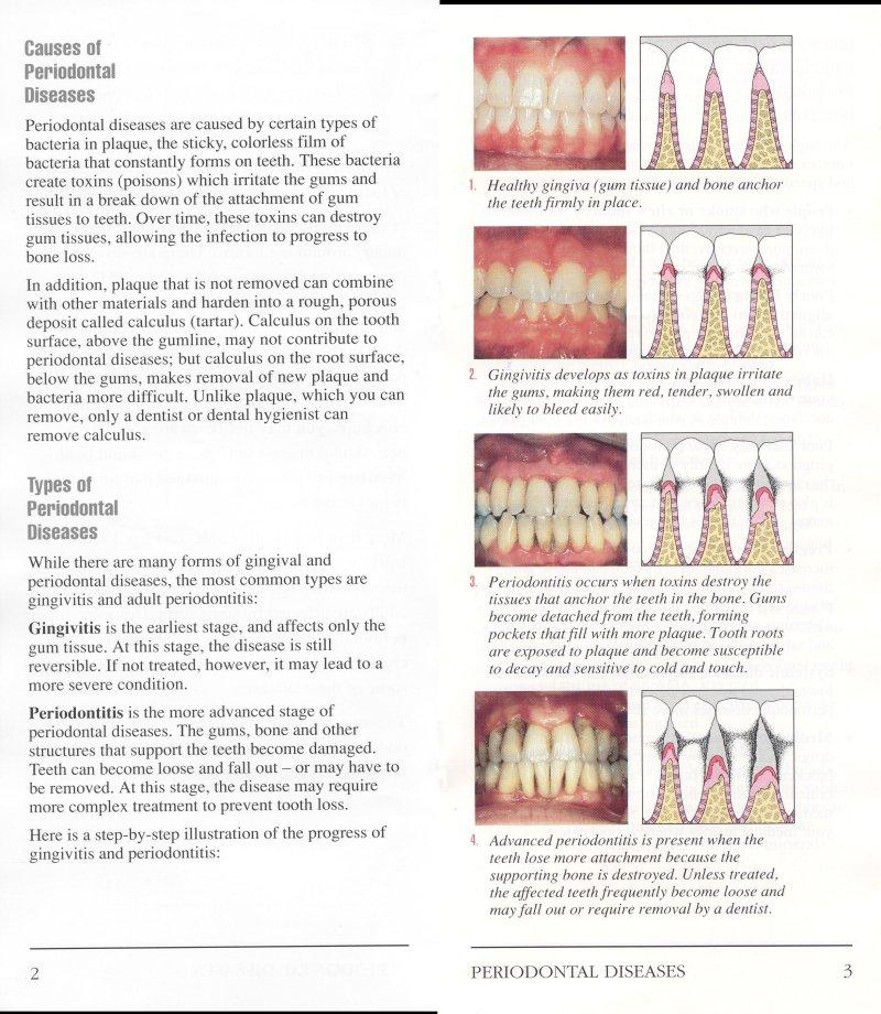 Periodontal Disease3