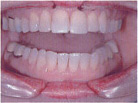 Invisalign Patient 2 After 4