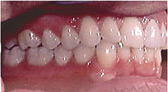 Invisalign Patient 3 After 3