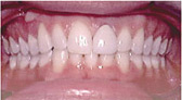 Invisalign Patient 3 After 4