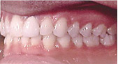 Invisalign Patient 3 After 5