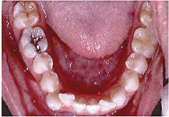 Invisalign Patient 3 Before 2