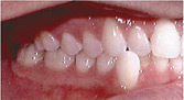 Invisalign Patient 3 Before 3
