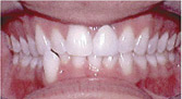 Invisalign Patient 3 Before 4