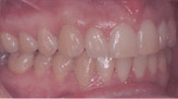 Invisalign Patient 4 After 6