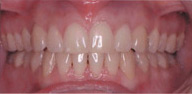 Invisalign Patient 4 After 7
