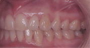 Invisalign Patient 4 After 8