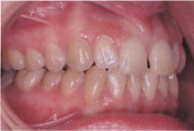 Invisalign Patient 4 Before 4