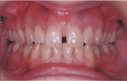 Invisalign Patient 4 Before 5
