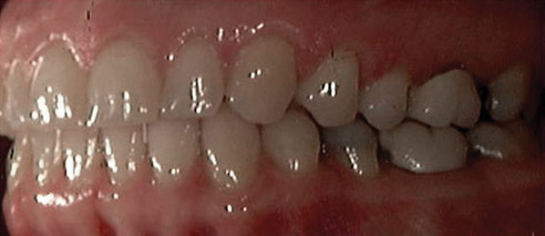Invisalign Patient 6 Before 1