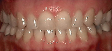 Invisalign Patient 6 After 4