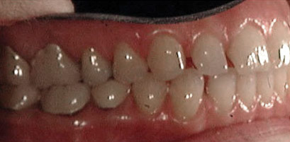 Invisalign Patient 6 Before 5