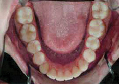 Invisalign Patient 7 After 2