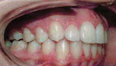 Invisalign Patient 7 After 3