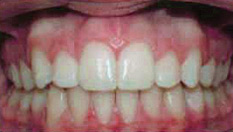 Invisalign Patient 7 After 4
