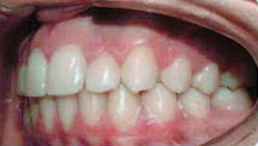 Invisalign Patient 7 After 5