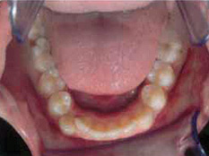 Invisalign Patient 7 Before 2