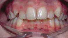 Invisalign Patient 7 Before 4