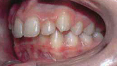 Invisalign Patient 7 Before 5