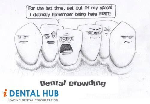 Dental Crowding